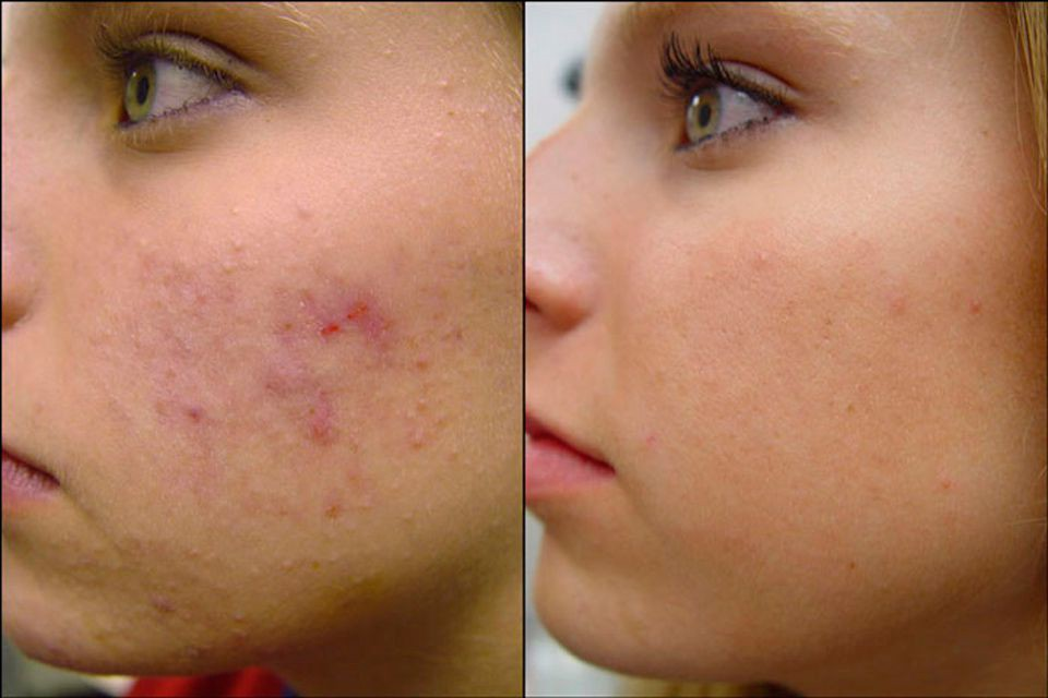 skin break out scar removal